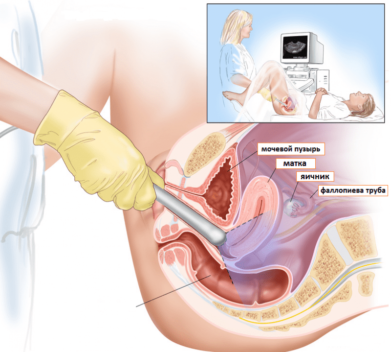 vaginalnoe-uzi-foto